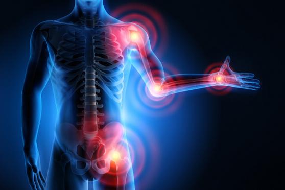 Artrite e artrosi, quali differenze?