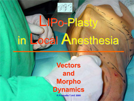 lipoplasty_in_local_anesthesiajpg