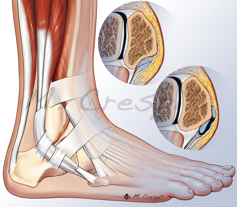 Ankle syndrome