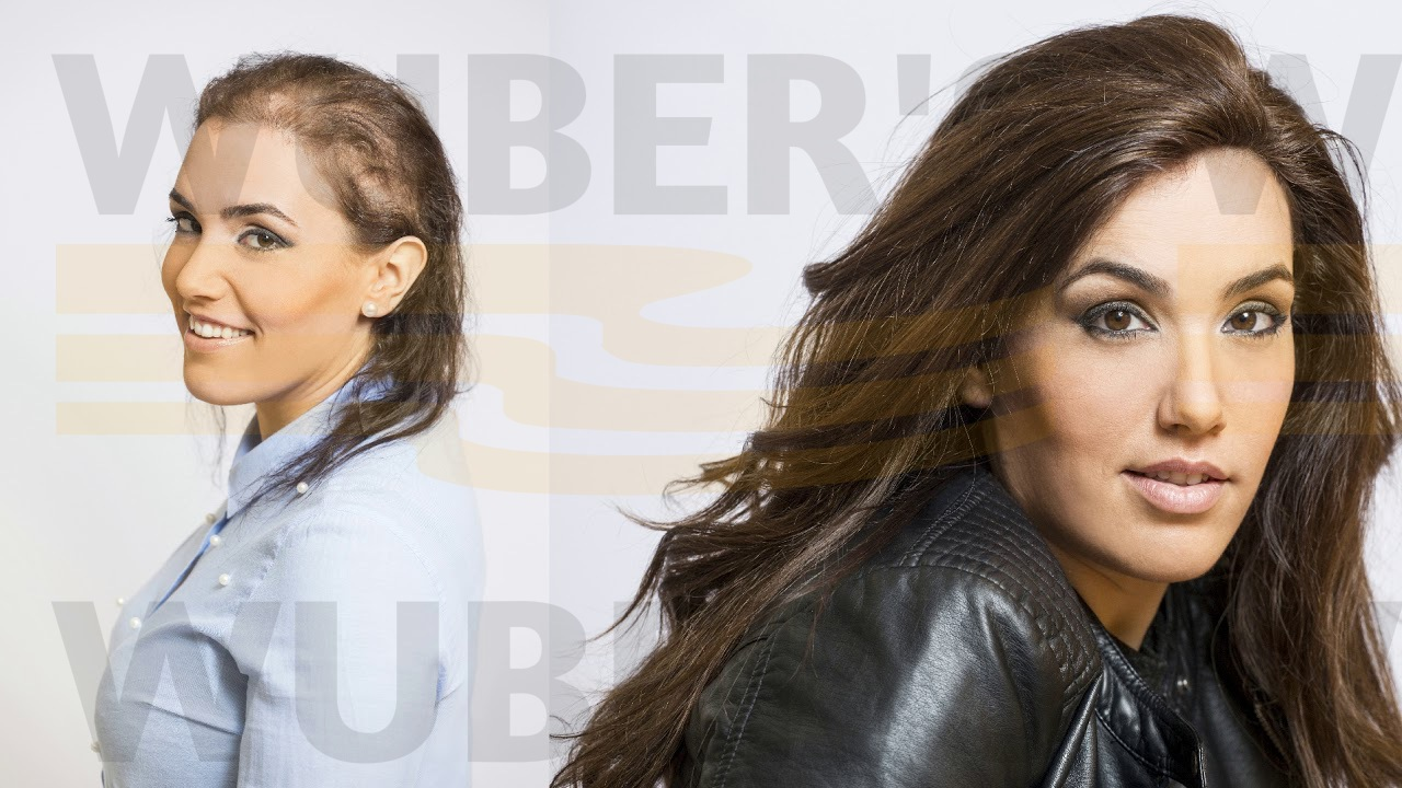 protesi capelli impianto capelli veri non chirurgico donna