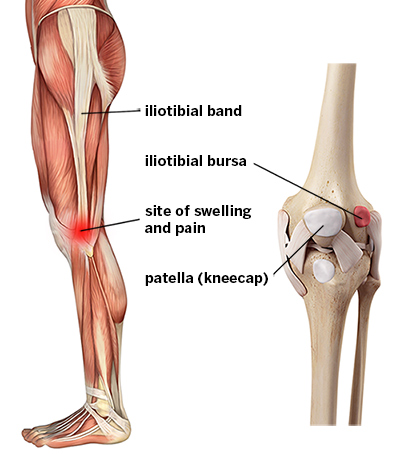 IT-band-syndrome-iliotibial-band-syndrome-ITBS-labeled-400jpg