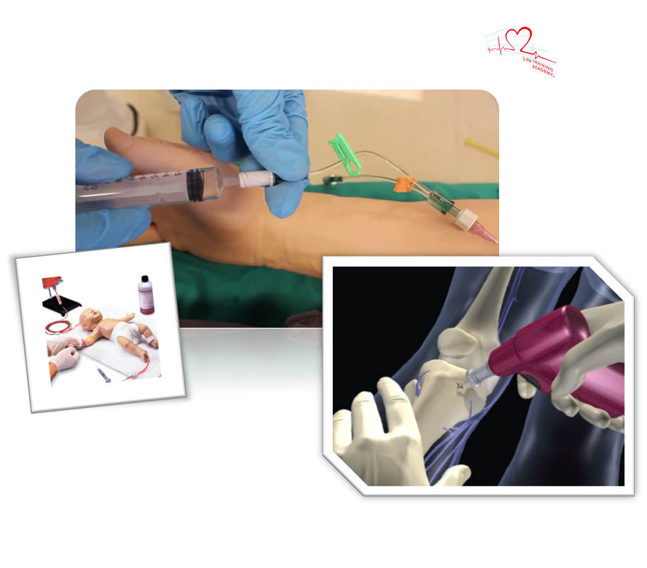 accessi vascolaripng