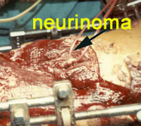 neurinoma_spejpg
